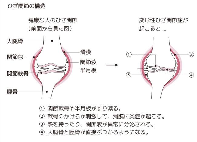 ひざ関節の構造